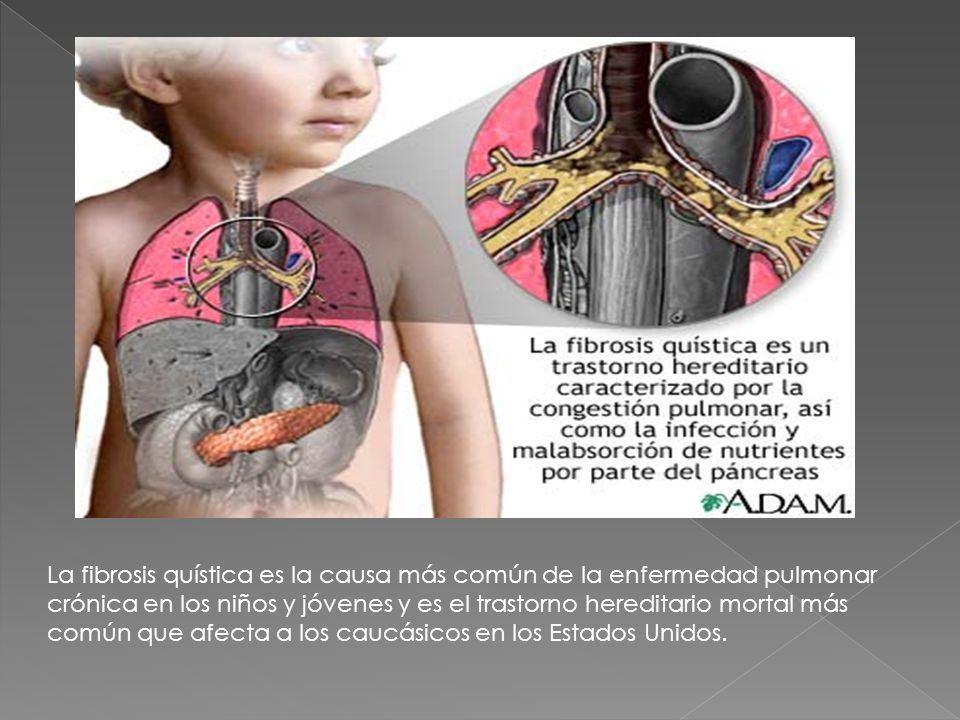 La fibrosis quística es la causa más común de la enfermedad pulmonar crónica en los niños y jóvenes y es el trastorno hereditario mortal más común que afecta a los caucásicos en los Estados Unidos.