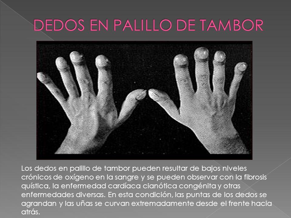 DEDOS EN PALILLO DE TAMBOR