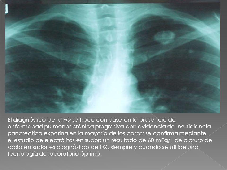 El diagnóstico de la FQ se hace con base en la presencia de enfermedad pulmonar crónica progresiva con evidencia de insuficiencia pancreática exocrina en la mayoría de los casos; se confirma mediante el estudio de electrólitos en sudor; un resultado de 60 mEq/L de cloruro de sodio en sudor es diagnóstico de FQ, siempre y cuando se utilice una tecnología de laboratorio óptima.