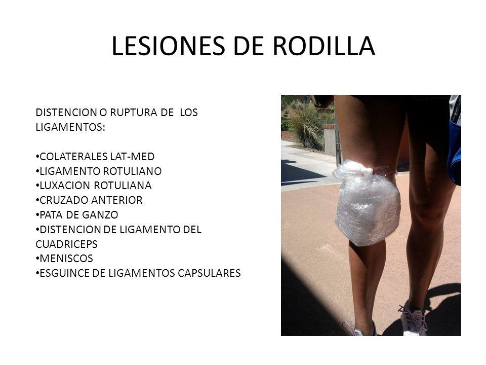 LESIONES DE RODILLA DISTENCION O RUPTURA DE LOS LIGAMENTOS: