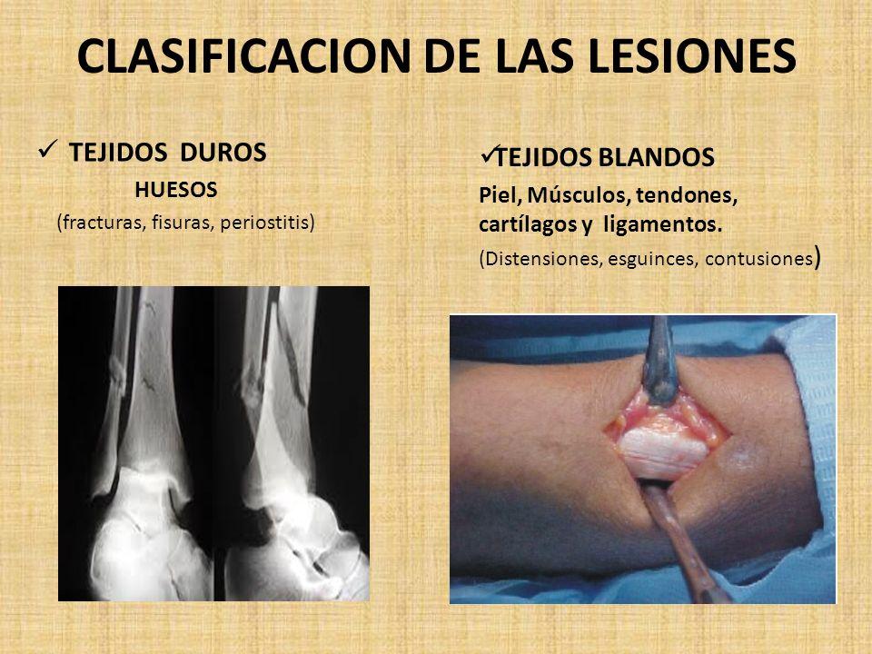 CLASIFICACION DE LAS LESIONES