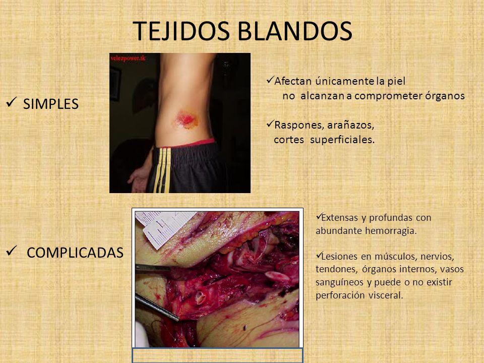 TEJIDOS BLANDOS SIMPLES COMPLICADAS Afectan únicamente la piel