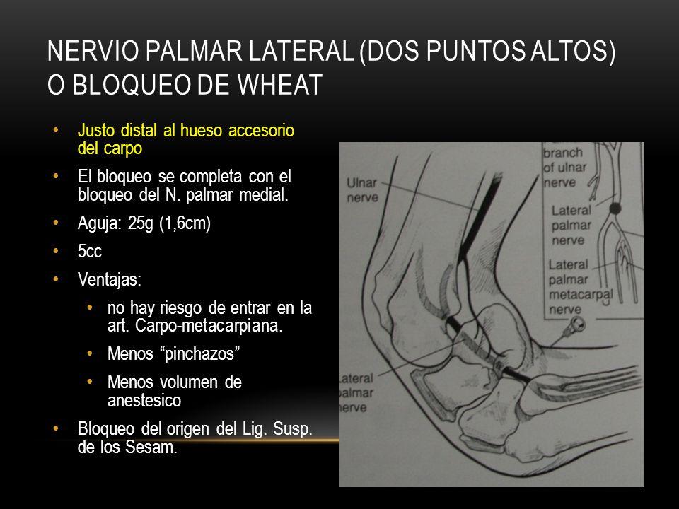 Nervio Palmar lateral (dos puntos altos) o bloqueo de Wheat