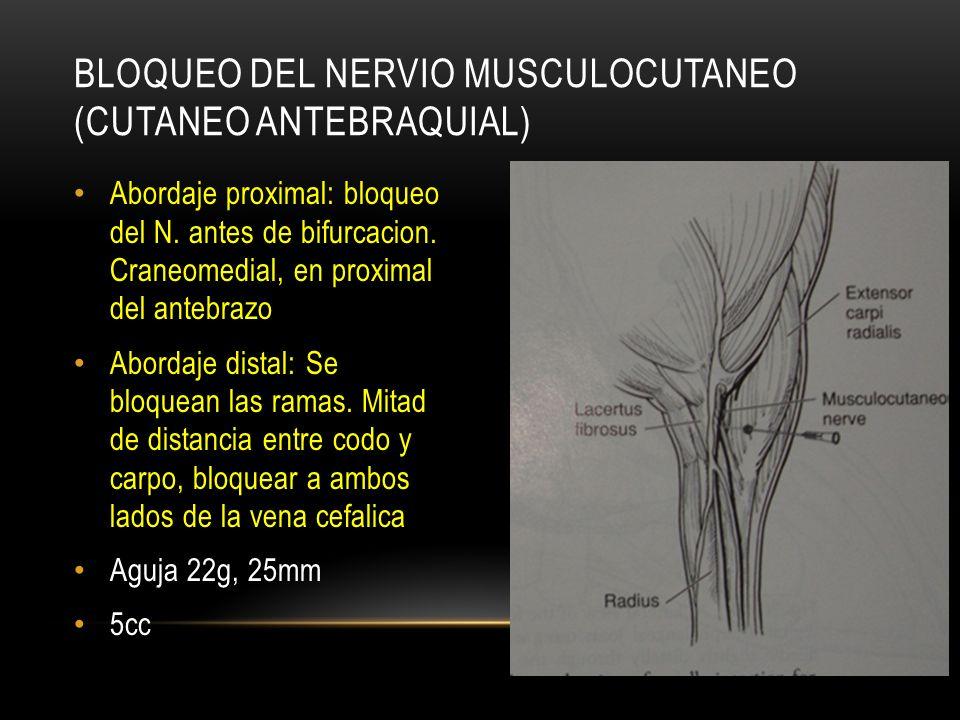 Bloqueo del Nervio musculocutaneo (cutaneo antebraquial)