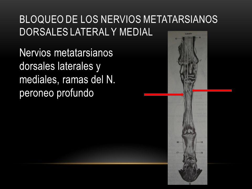 Bloqueo de los nervios metatarsianos dorsales lateral y medial