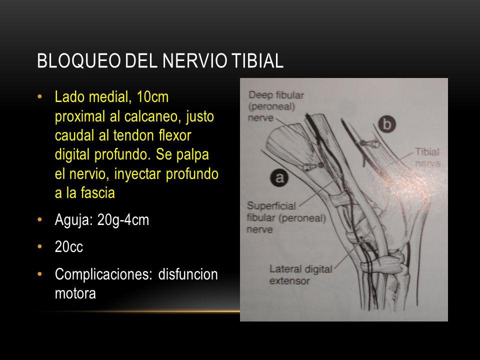 Bloqueo del nervio tibial