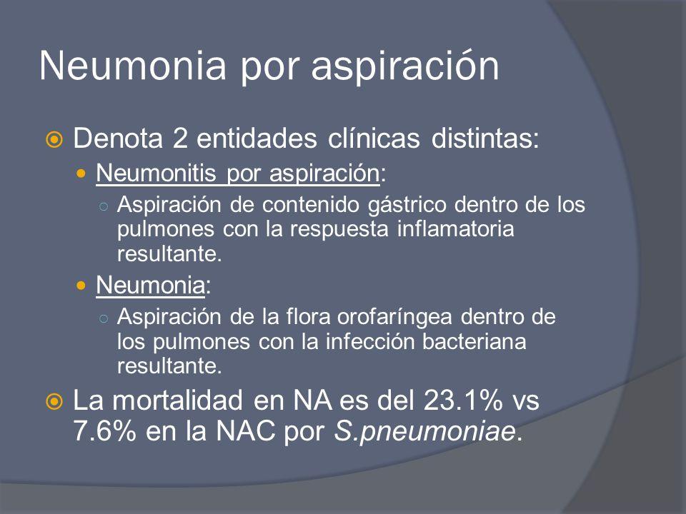 Neumonia por aspiración