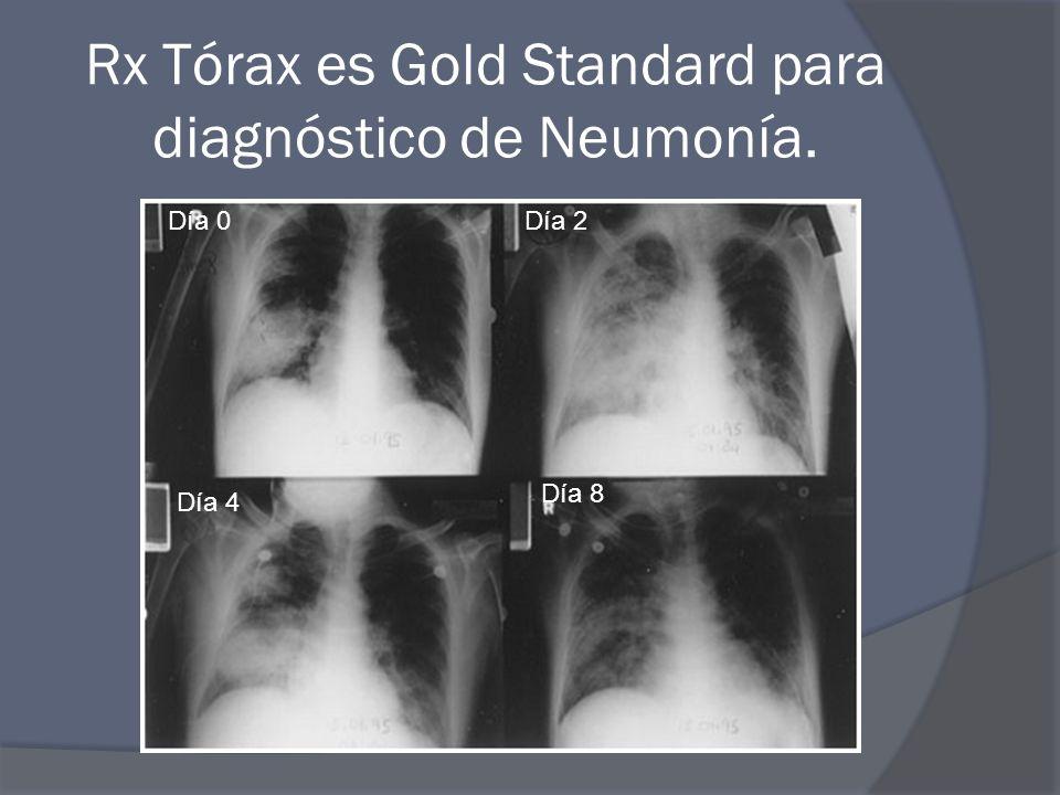Rx Tórax es Gold Standard para diagnóstico de Neumonía.