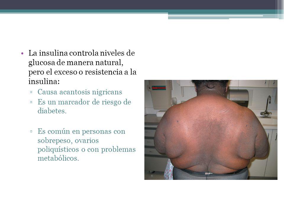 La insulina controla niveles de glucosa de manera natural, pero el exceso o resistencia a la insulina:
