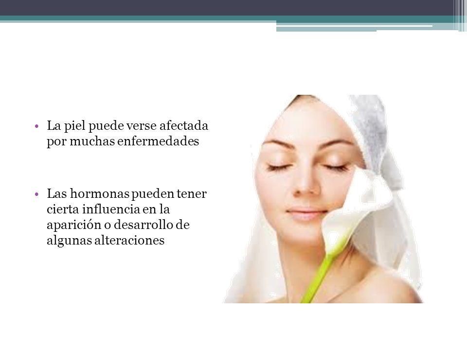 La piel puede verse afectada por muchas enfermedades
