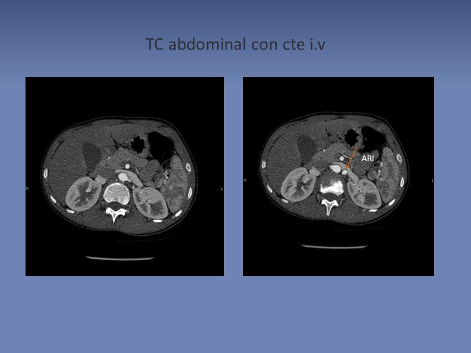 TC abdominal con cte i.v ARI