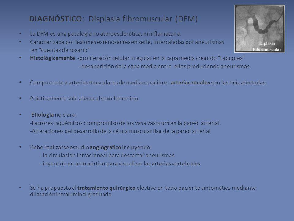 DIAGNÓSTICO: Displasia fibromuscular (DFM)