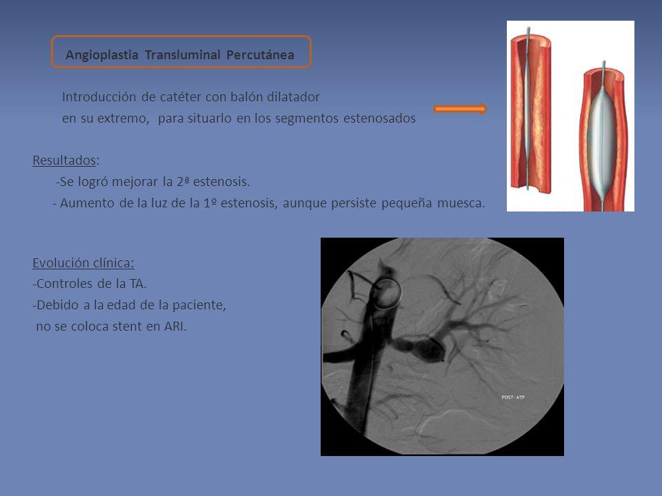 Angioplastia Transluminal Percutánea Introducción de catéter con balón dilatador en su extremo, para situarlo en los segmentos estenosados Resultados: -Se logró mejorar la 2ª estenosis.