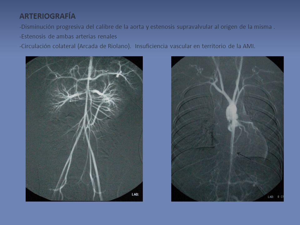 ARTERIOGRAFÍA -Disminución progresiva del calibre de la aorta y estenosis supravalvular al origen de la misma .