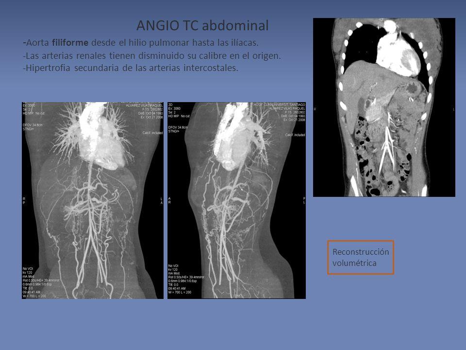 ANGIO TC abdominal -Aorta filiforme desde el hilio pulmonar hasta las ilíacas. -Las arterias renales tienen disminuido su calibre en el origen.
