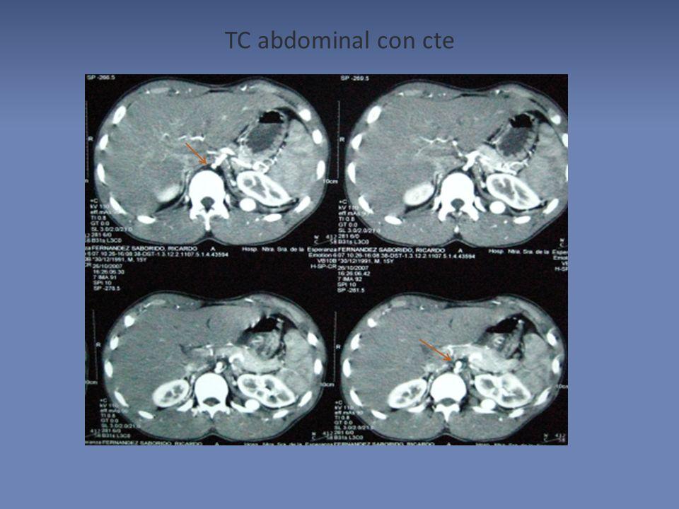 TC abdominal con cte