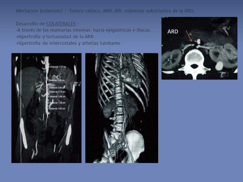 Afectación (estenosis) : -Tronco celíaco, AMI, ARI, estenosis suboclusiva de la ARD. Desarrollo de COLATERALES : -A través de las mamarias internas hacia epigástricas e ilíacas. -Hipertrofia y tortuosidad de la AMI . -Hipertrofia de intercostales y arterias lumbares .