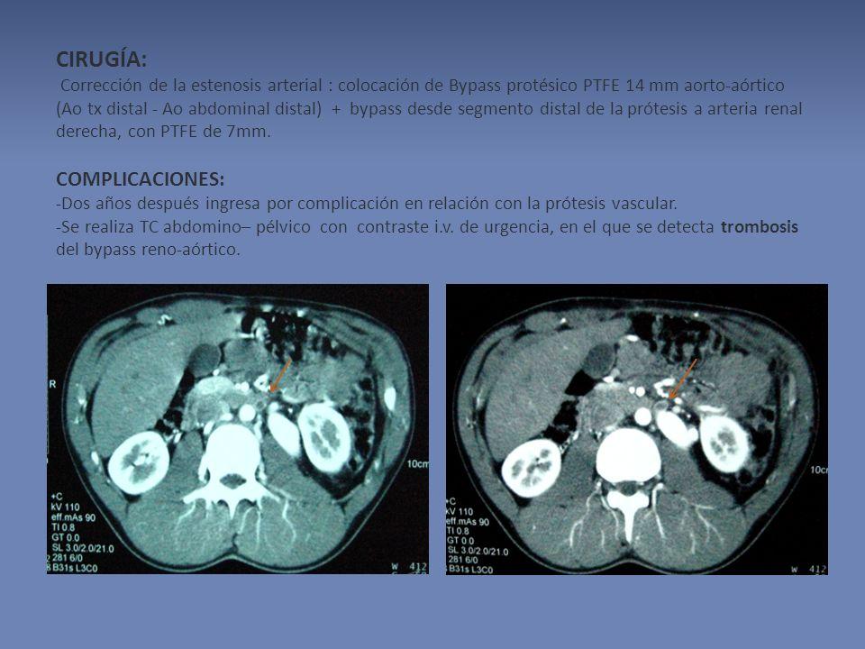 CIRUGÍA: Corrección de la estenosis arterial : colocación de Bypass protésico PTFE 14 mm aorto-aórtico (Ao tx distal - Ao abdominal distal) + bypass desde segmento distal de la prótesis a arteria renal derecha, con PTFE de 7mm.