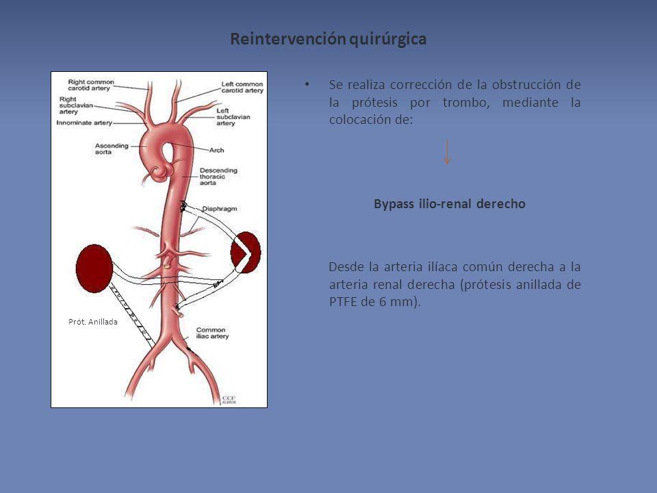 Reintervención quirúrgica