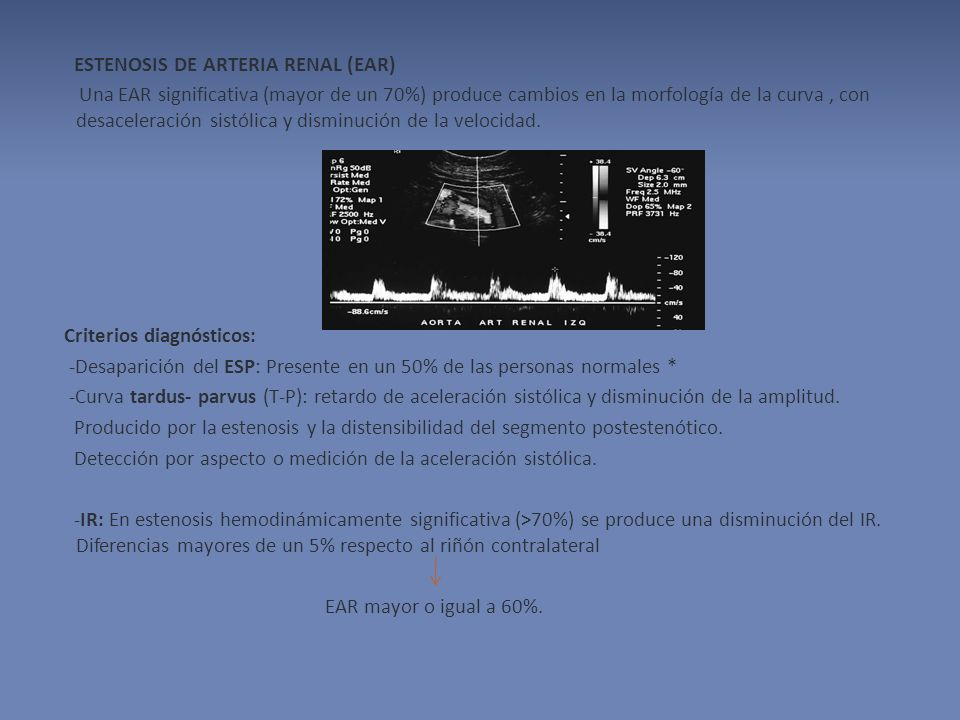 ESTENOSIS DE ARTERIA RENAL (EAR) Una EAR significativa (mayor de un 70%) produce cambios en la morfología de la curva , con desaceleración sistólica y disminución de la velocidad.