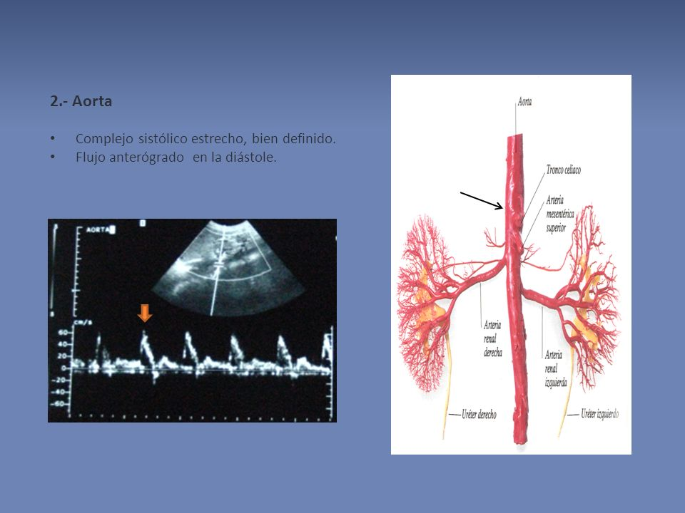 2.- Aorta Complejo sistólico estrecho, bien definido.