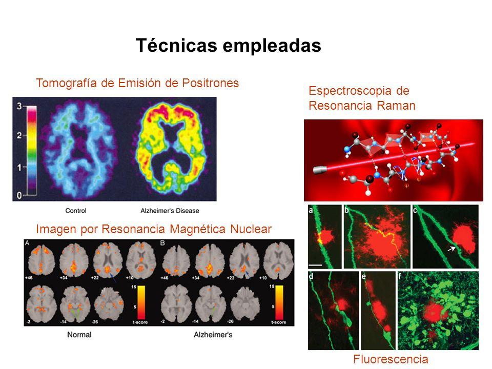 Técnicas empleadas Tomografía de Emisión de Positrones