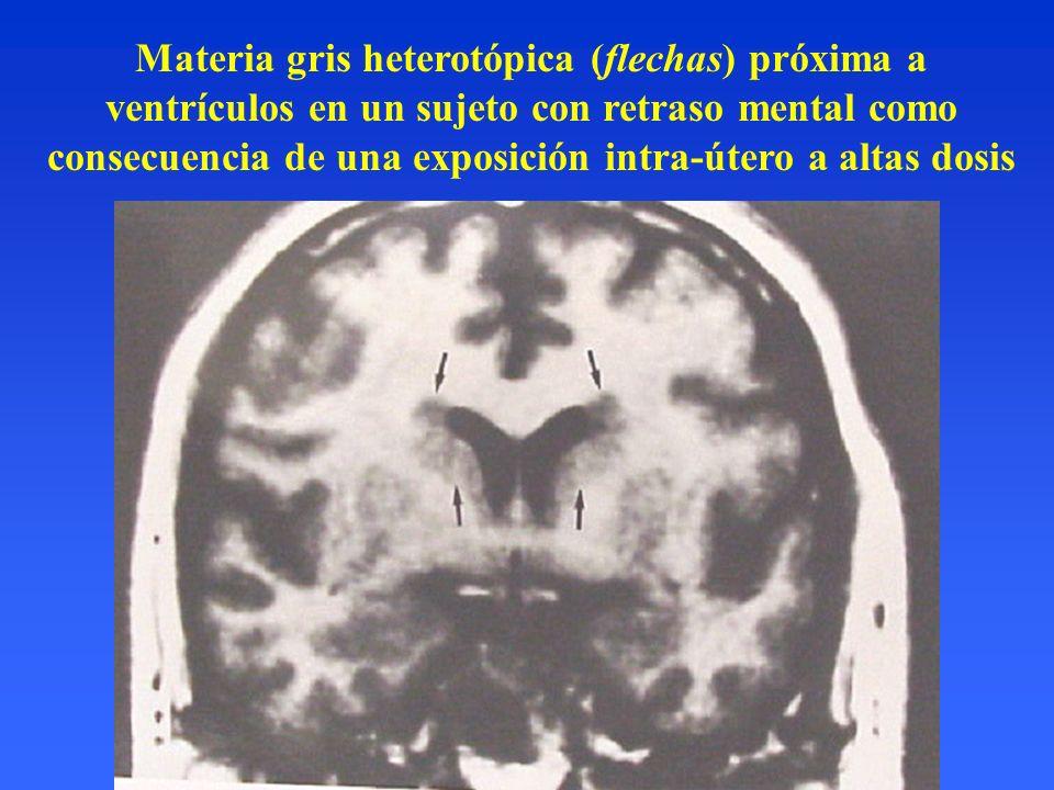 Materia gris heterotópica (flechas) próxima a ventrículos en un sujeto con retraso mental como consecuencia de una exposición intra-útero a altas dosis
