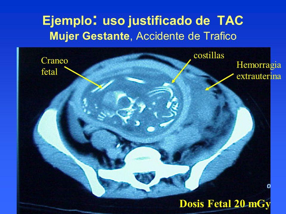 Ejemplo: uso justificado de TAC Mujer Gestante, Accidente de Trafico