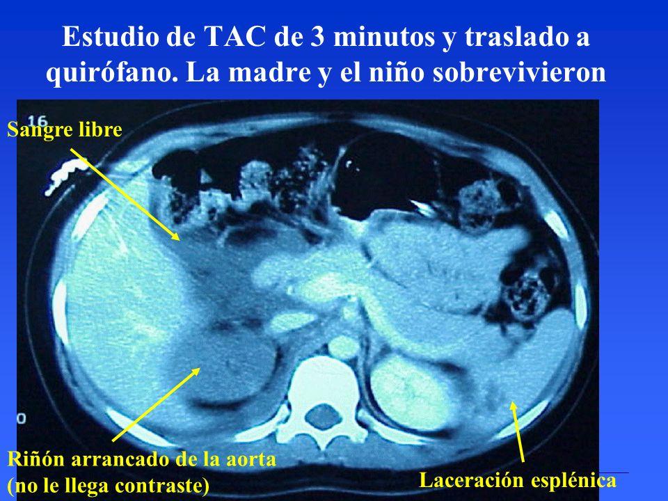 Estudio de TAC de 3 minutos y traslado a quirófano