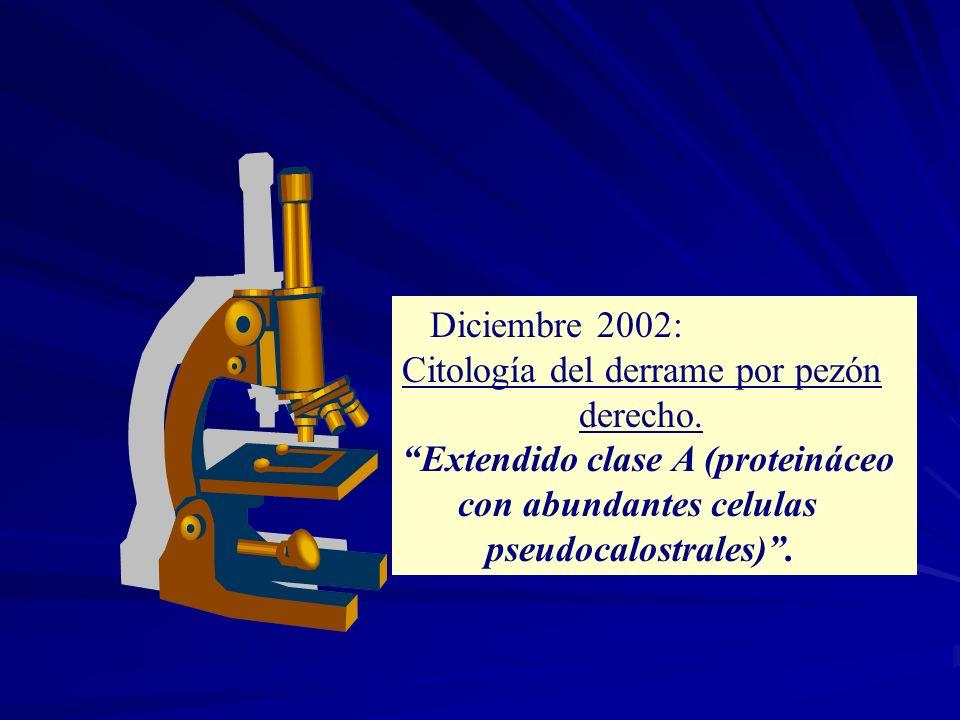 Diciembre 2002: Citología del derrame por pezón. derecho. Extendido clase A (proteináceo. con abundantes celulas.