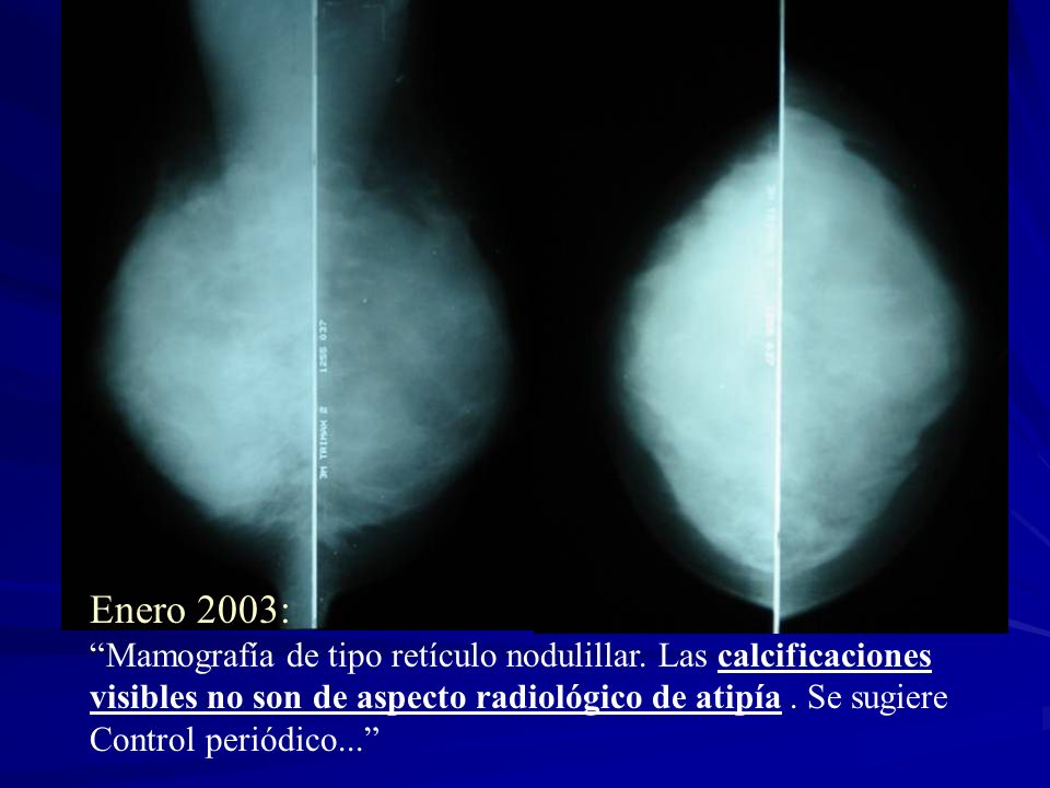 Enero 2003: Mamografía de tipo retículo nodulillar. Las calcificaciones. visibles no son de aspecto radiológico de atipía . Se sugiere.