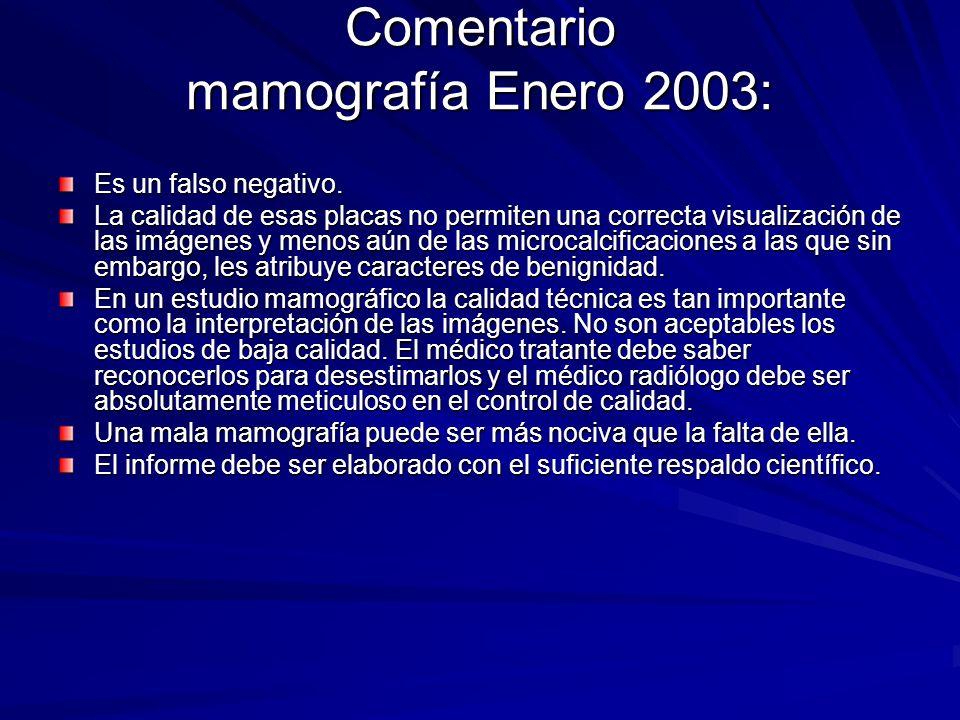Comentario mamografía Enero 2003: