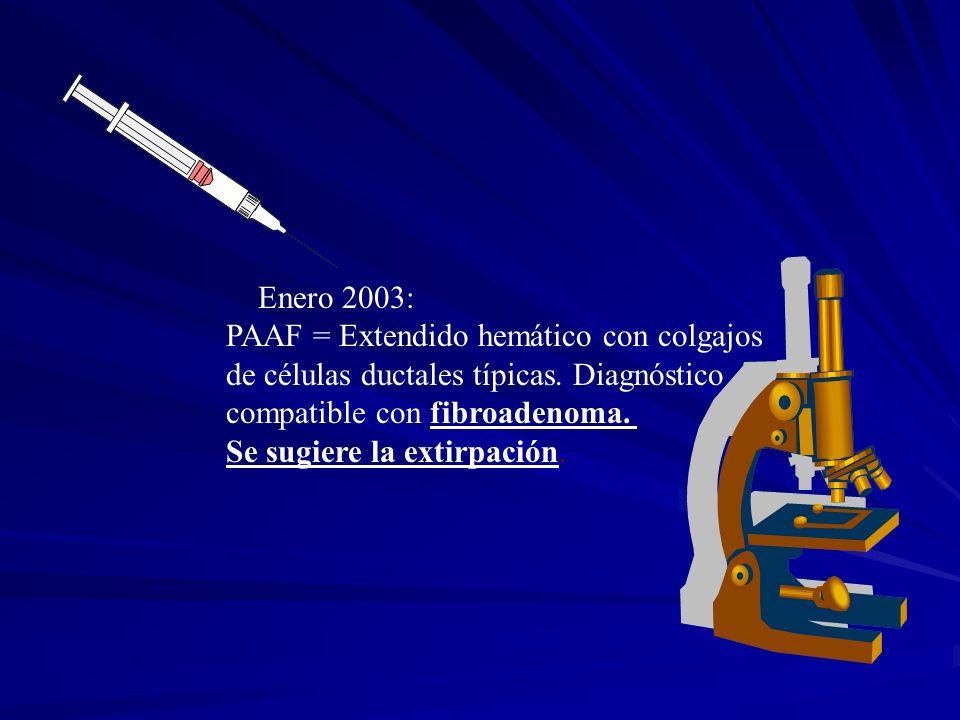 Enero 2003: PAAF = Extendido hemático con colgajos. de células ductales típicas. Diagnóstico. compatible con fibroadenoma.