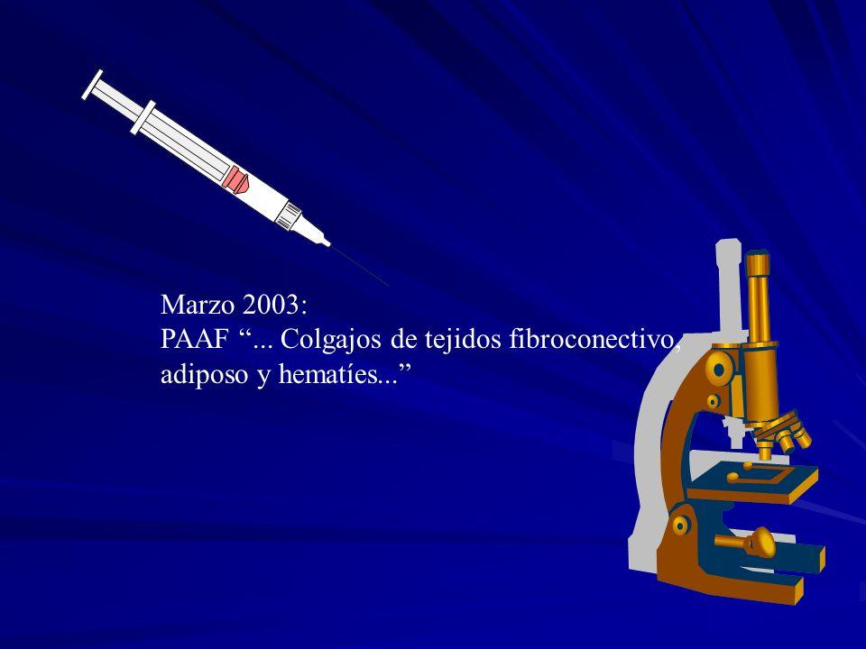 Marzo 2003: PAAF ... Colgajos de tejidos fibroconectivo, adiposo y hematíes...