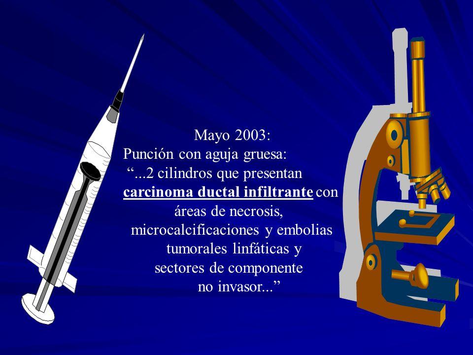 Mayo 2003: Punción con aguja gruesa: ...2 cilindros que presentan. carcinoma ductal infiltrante con.