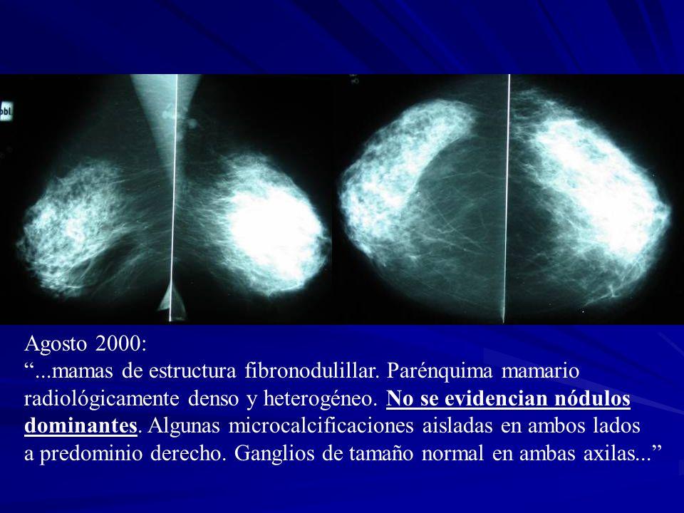 Agosto 2000: ...mamas de estructura fibronodulillar. Parénquima mamario. radiológicamente denso y heterogéneo. No se evidencian nódulos.