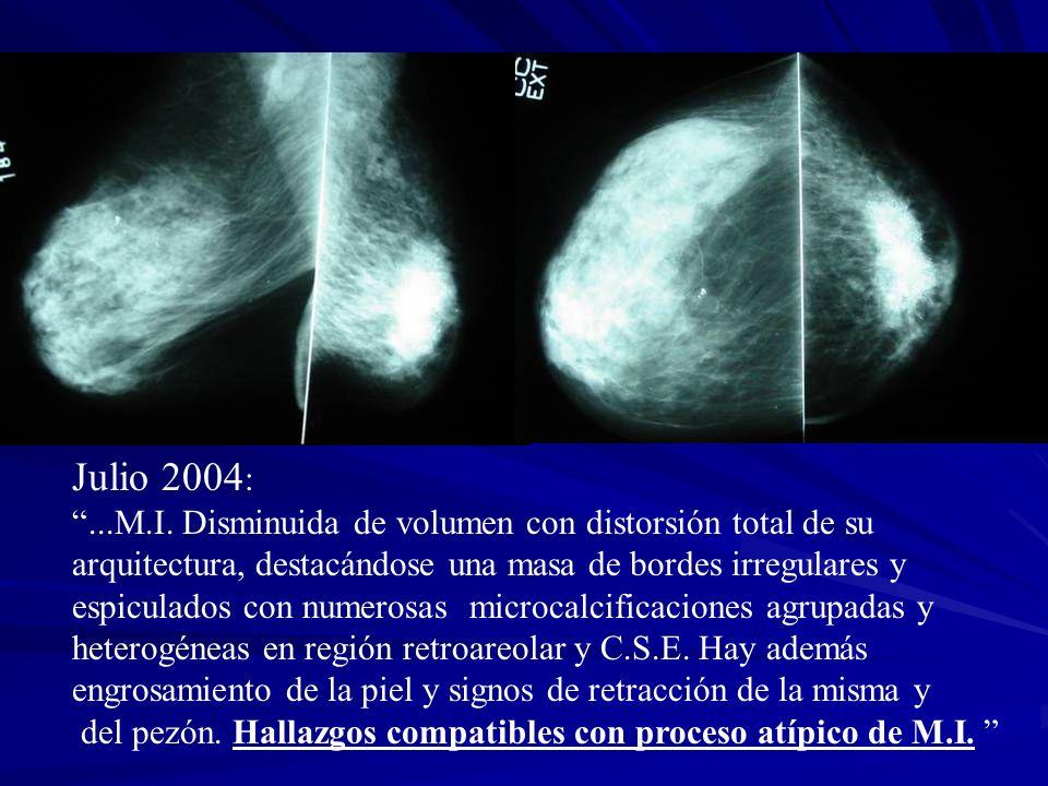 Julio 2004: ...M.I. Disminuida de volumen con distorsión total de su