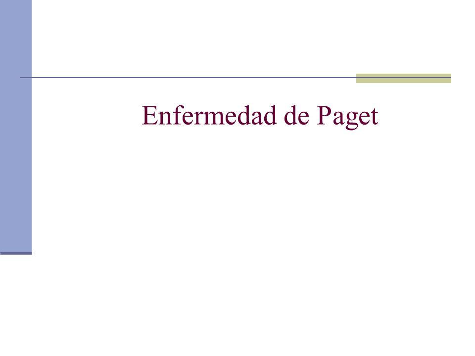 Enfermedad de Paget
