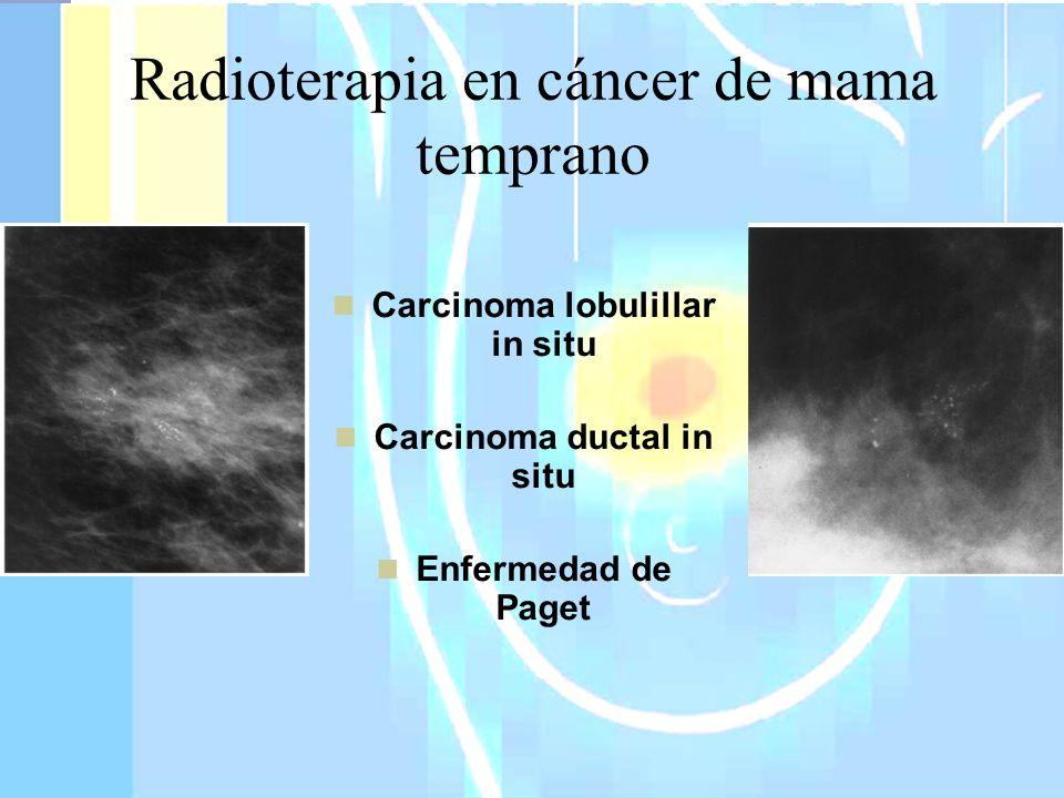 Radioterapia en cáncer de mama temprano