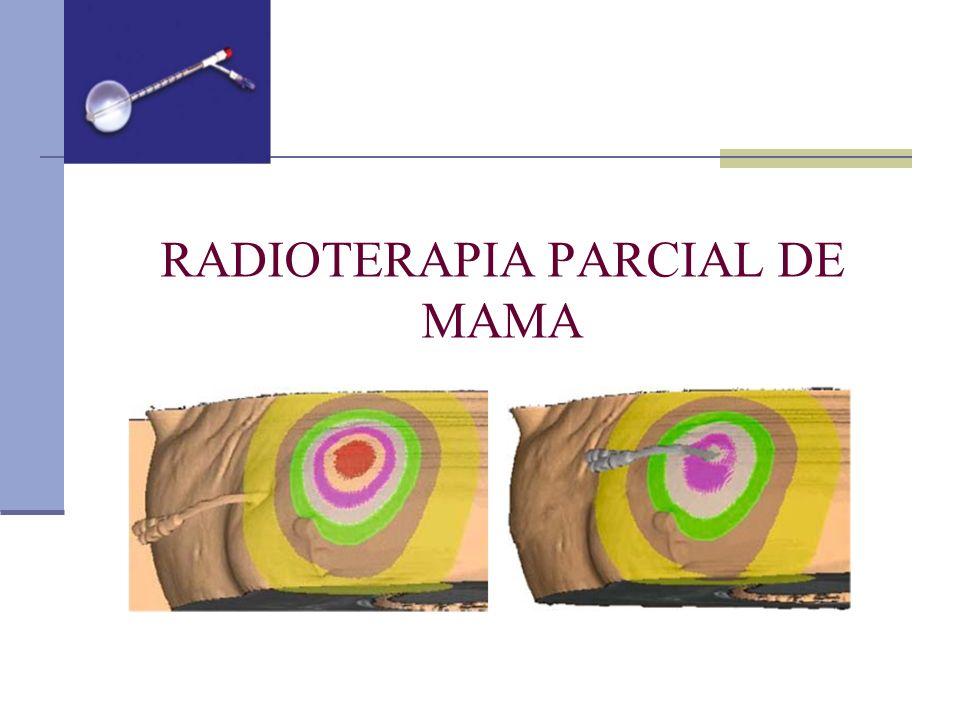 RADIOTERAPIA PARCIAL DE MAMA