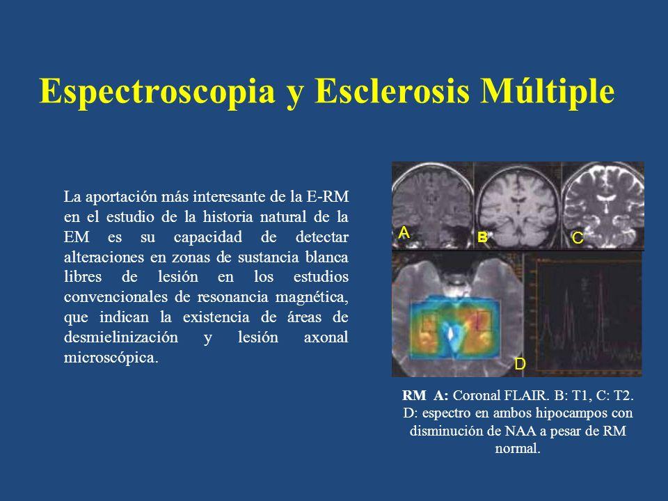 Espectroscopia y Esclerosis Múltiple