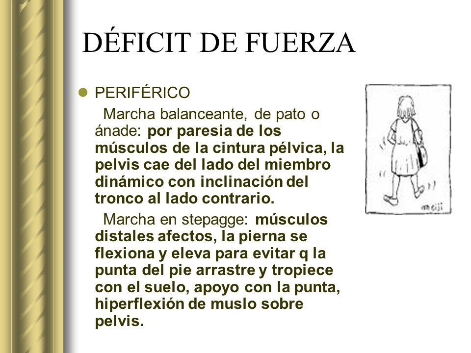 DÉFICIT DE FUERZA PERIFÉRICO
