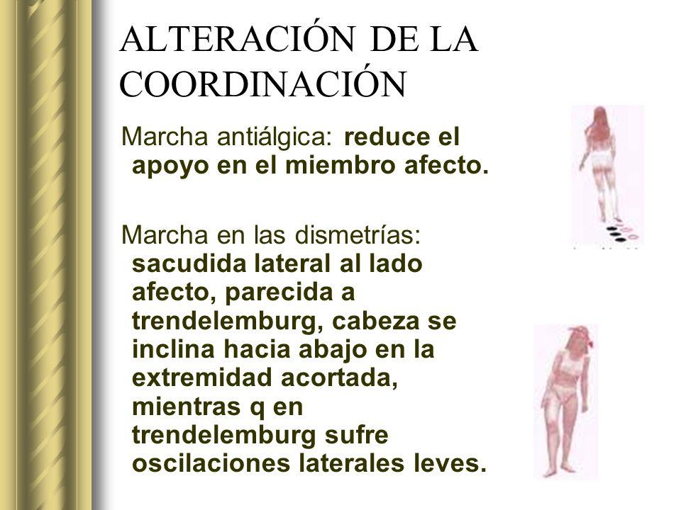 ALTERACIÓN DE LA COORDINACIÓN