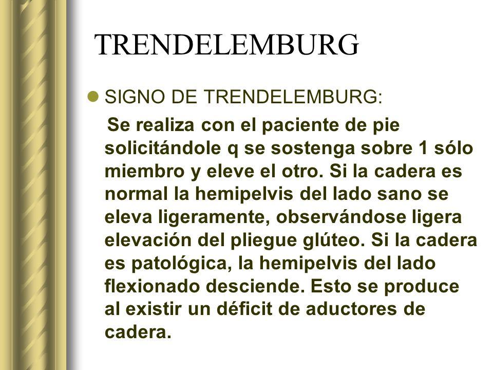 TRENDELEMBURG SIGNO DE TRENDELEMBURG: