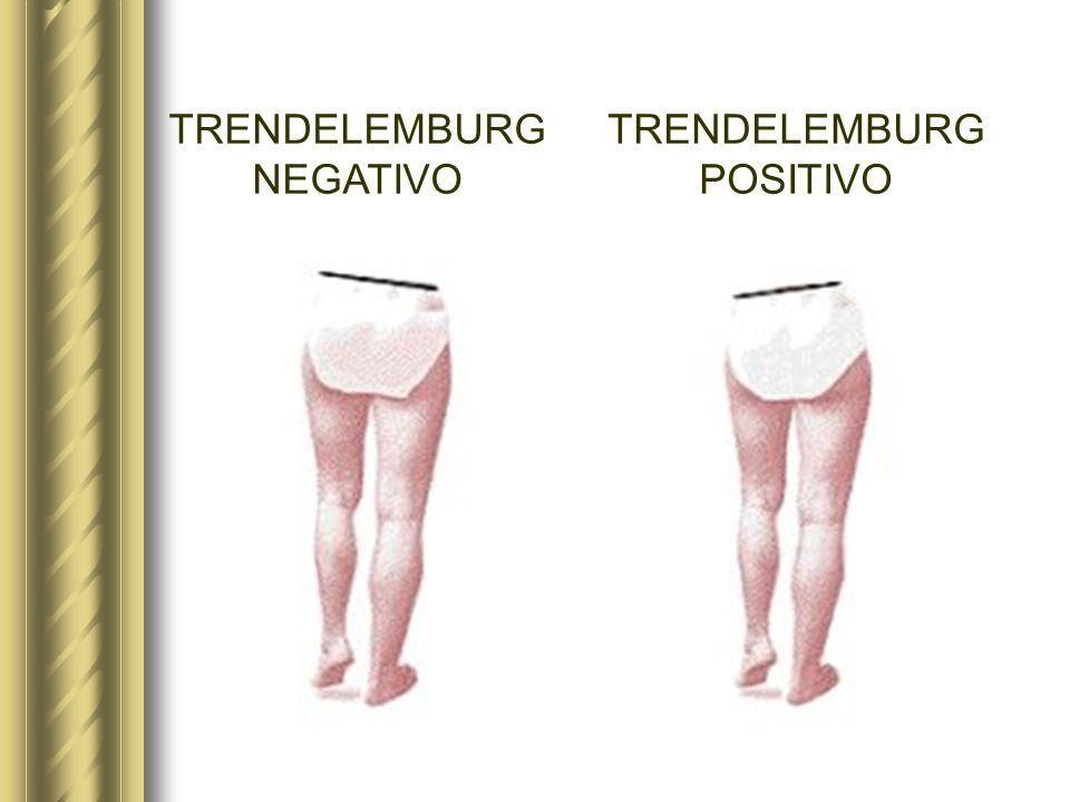 TRENDELEMBURG NEGATIVO TRENDELEMBURG POSITIVO