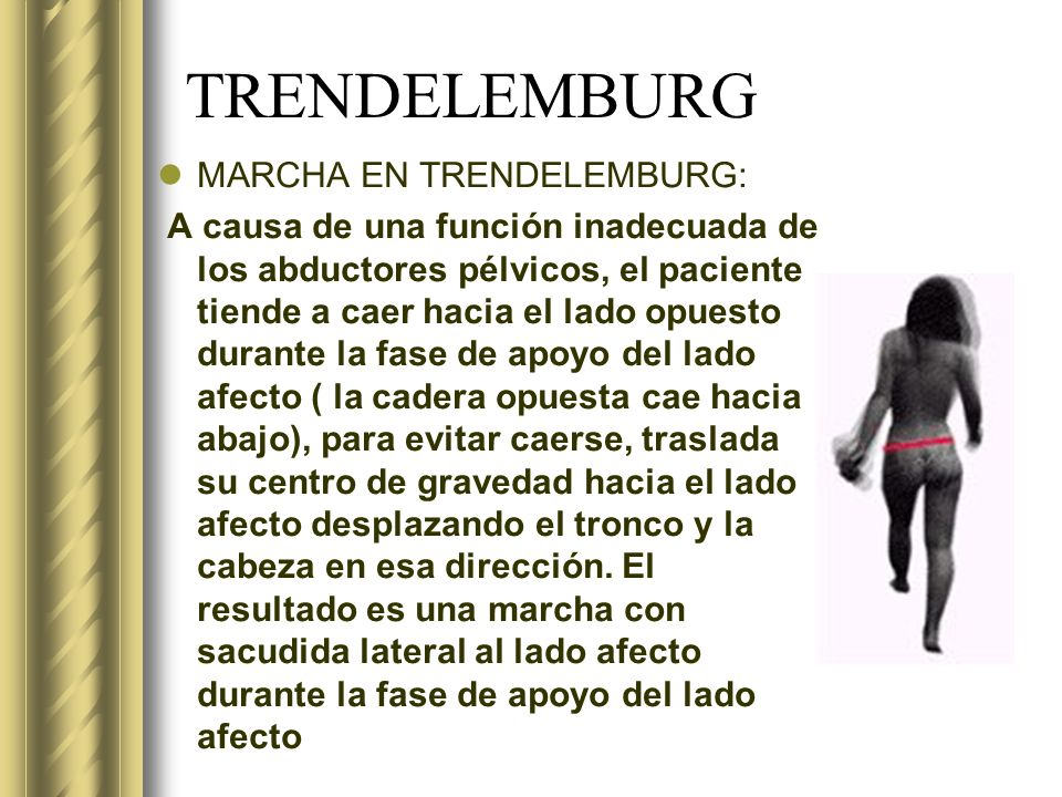 TRENDELEMBURG MARCHA EN TRENDELEMBURG: