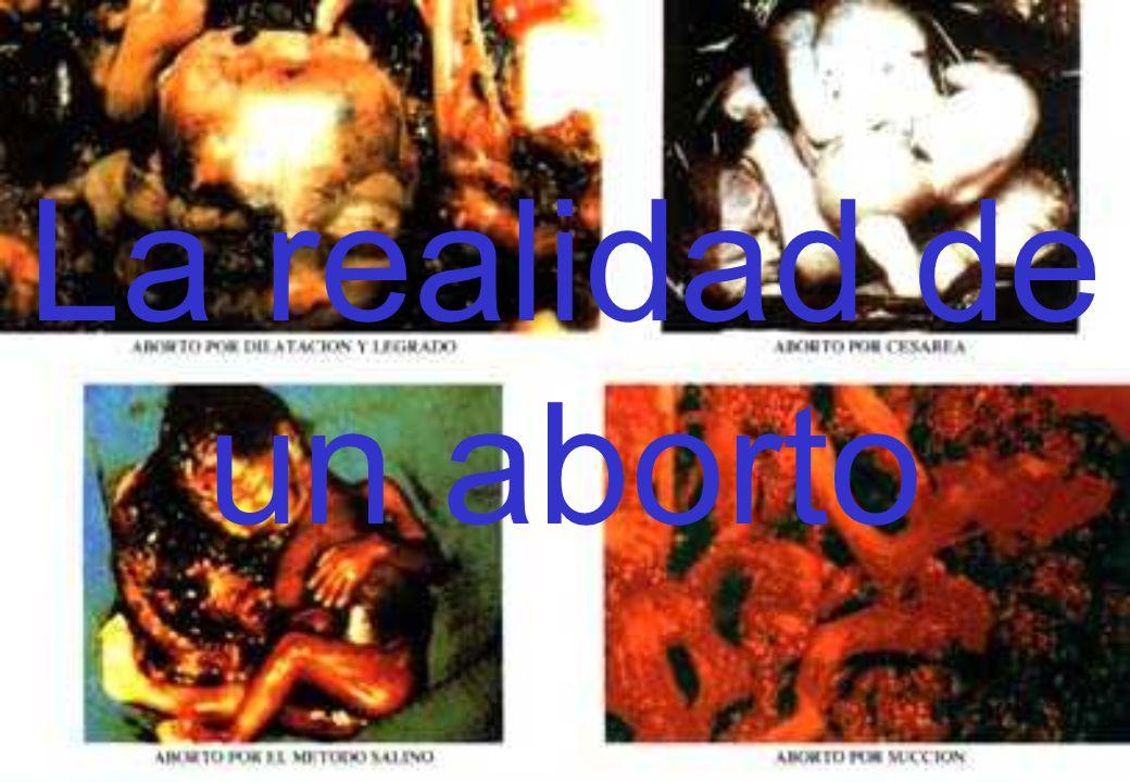 La realidad de un aborto