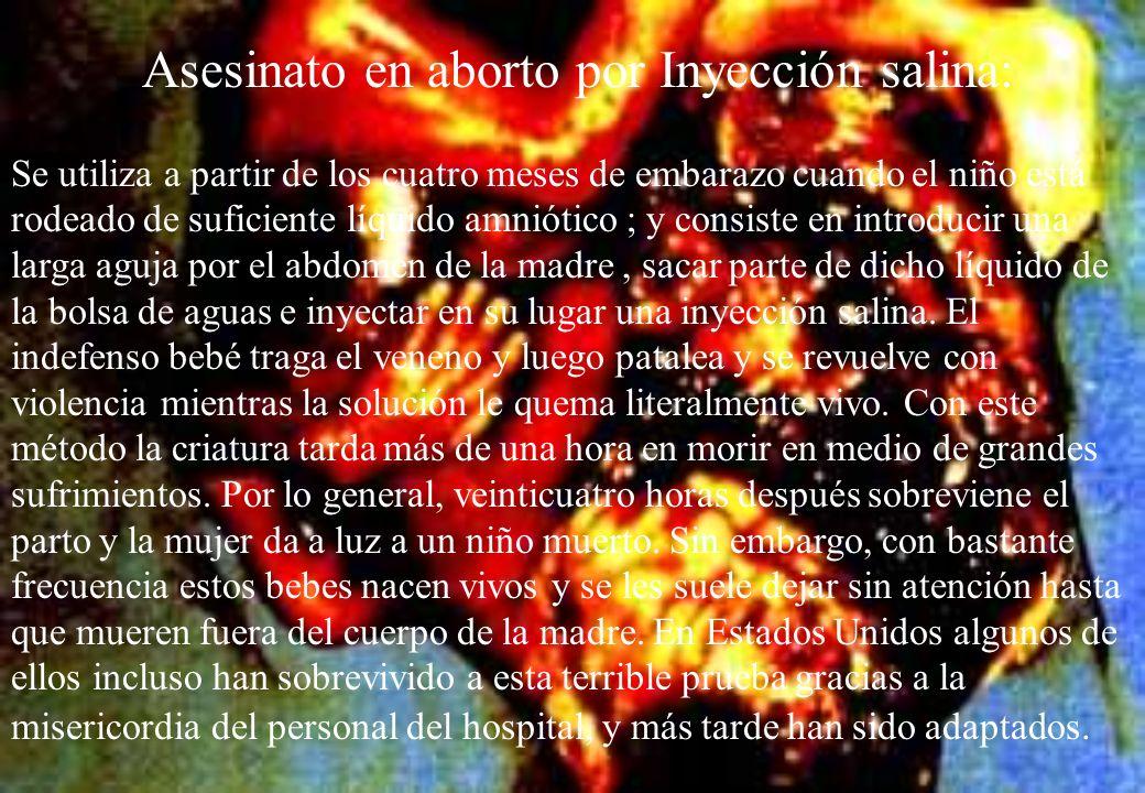 Asesinato en aborto por Inyección salina: