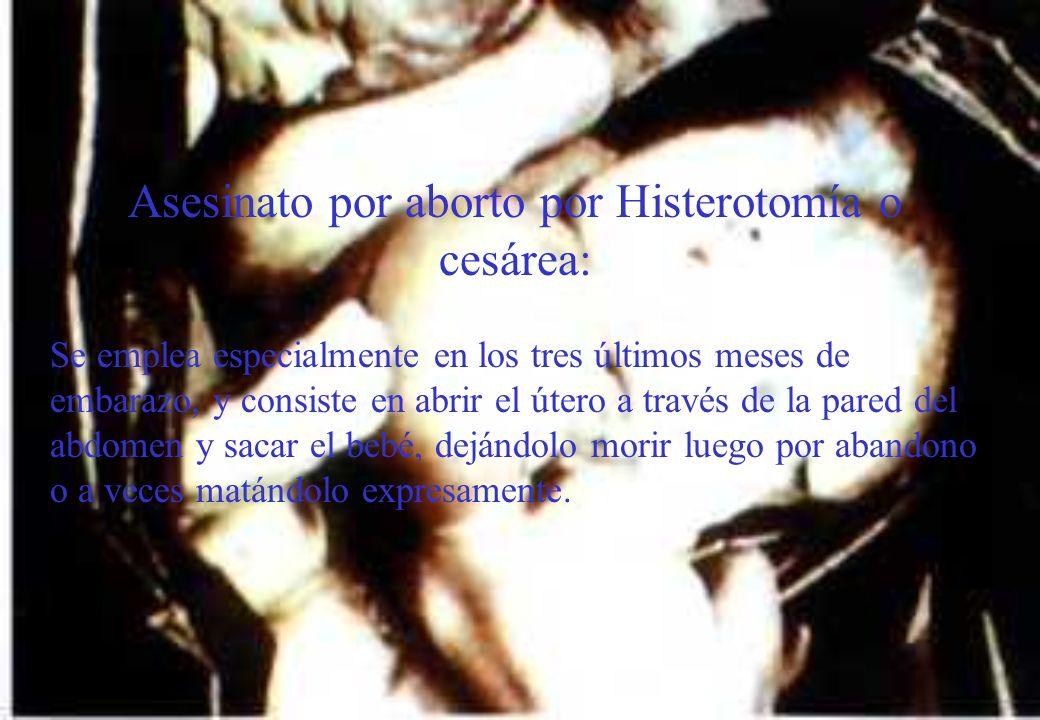 Asesinato por aborto por Histerotomía o cesárea:
