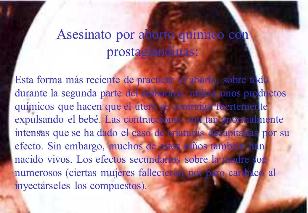 Asesinato por aborto químico con prostaglandinas: